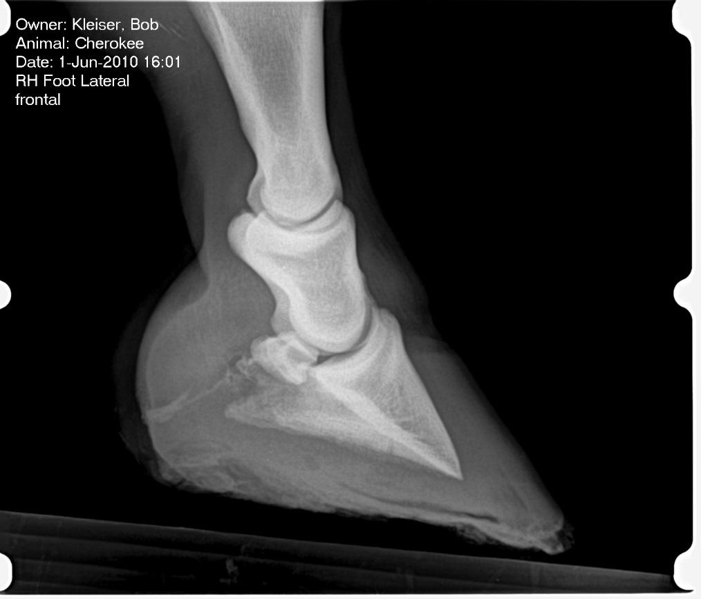 "Figure 4. The hoof wall (green arrow) is not parallel with the coffin bone (black arrow). This is ""rotation"" or ""founder"" seen after a case of laminitis."
